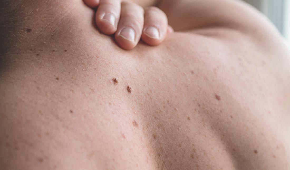 closeup of back with moles