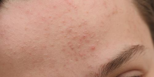 subclinical acne on forehead