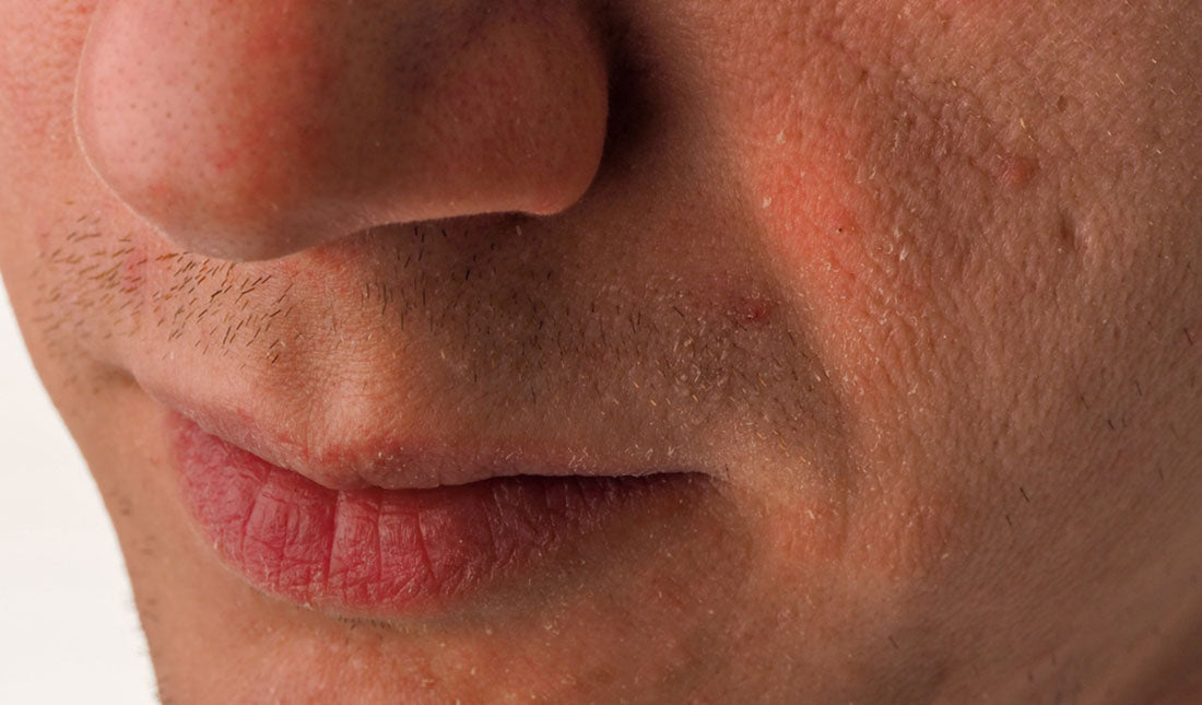 closeup mans face with dry skin