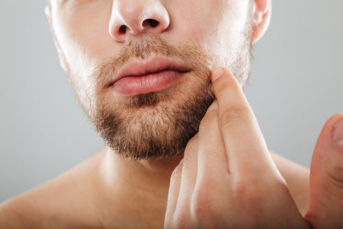 How to Grow Facial Hair: Are There Solutions That Work?