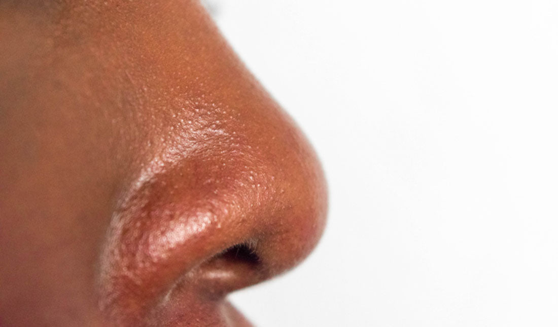 closeup oily skin on nose