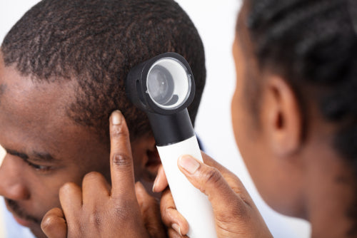 Moles On Scalp Symptoms Prevention And Treatment For Skin Cancer On The Scalp Tiege Hanley