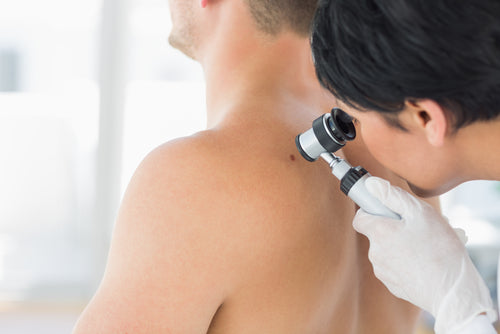 doctor examining mole on back