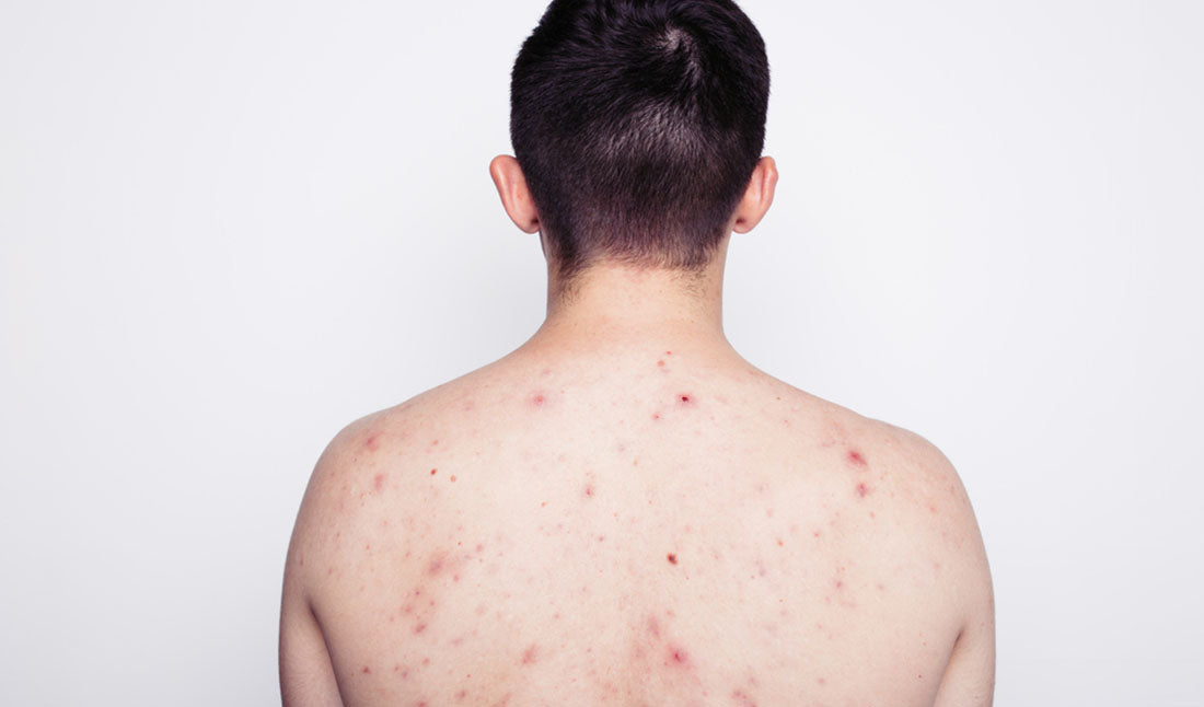 guy showing back acne