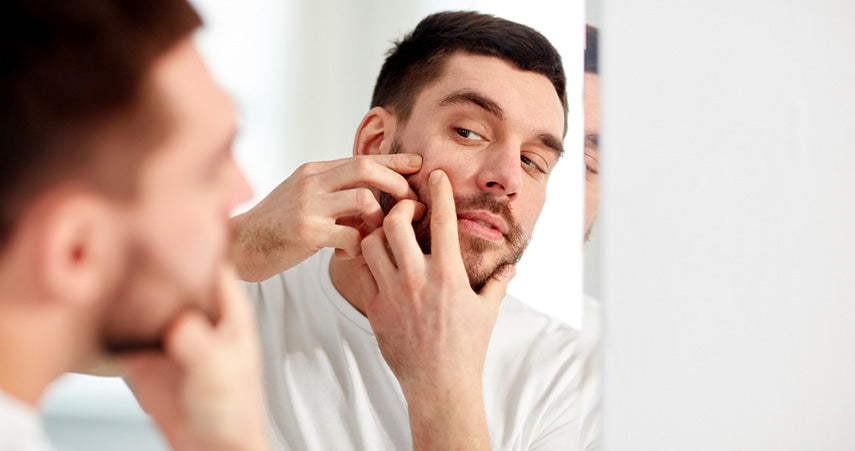 man squeezing blemish on face