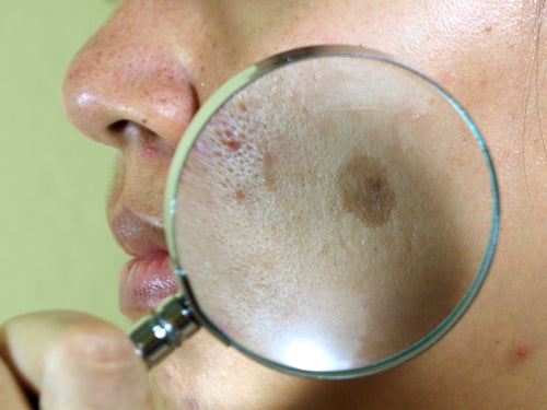 melasma magnified on face