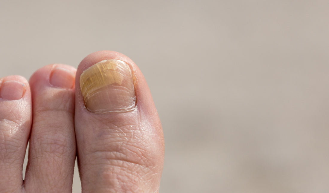nail fungus on big toe