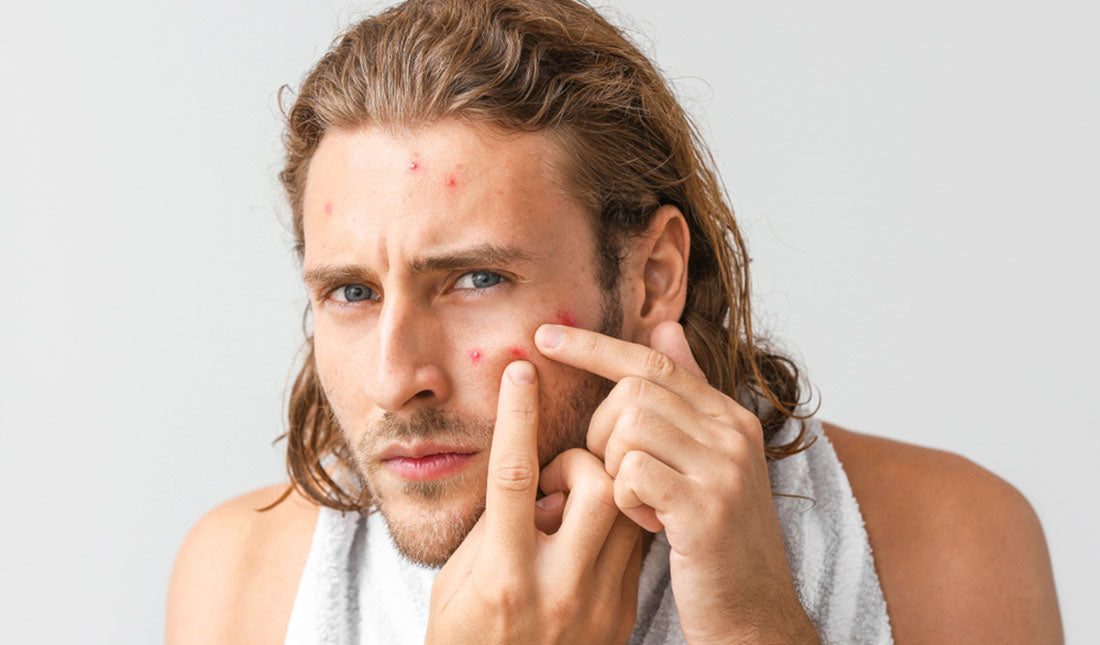portrait of man popping pimple