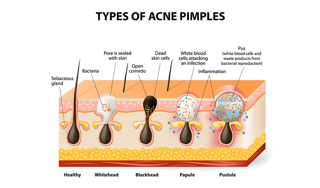 types of acne pimples illustration