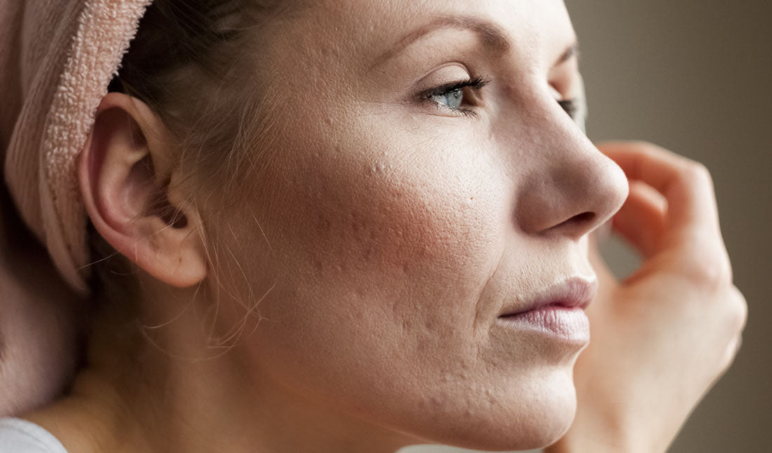 woman with acne scars on cheek