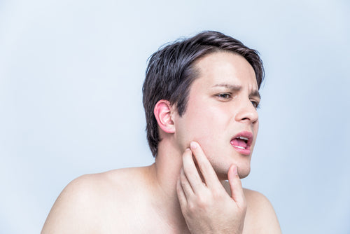 Acne on the Jawline: Why You Have it and How to Get Rid of