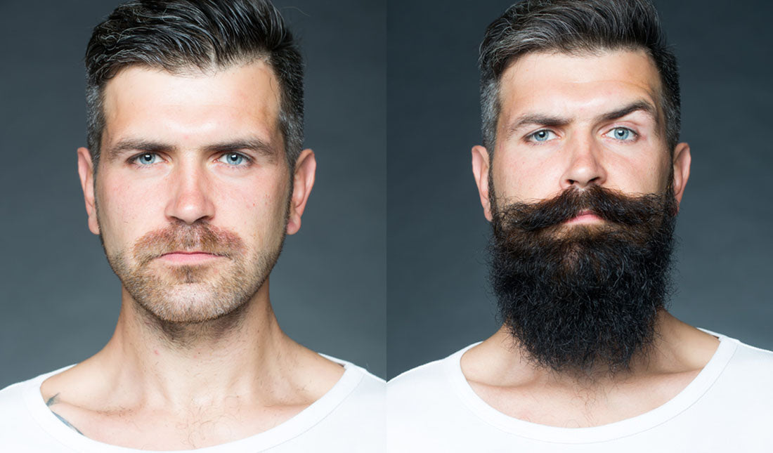 before and after beard growth
