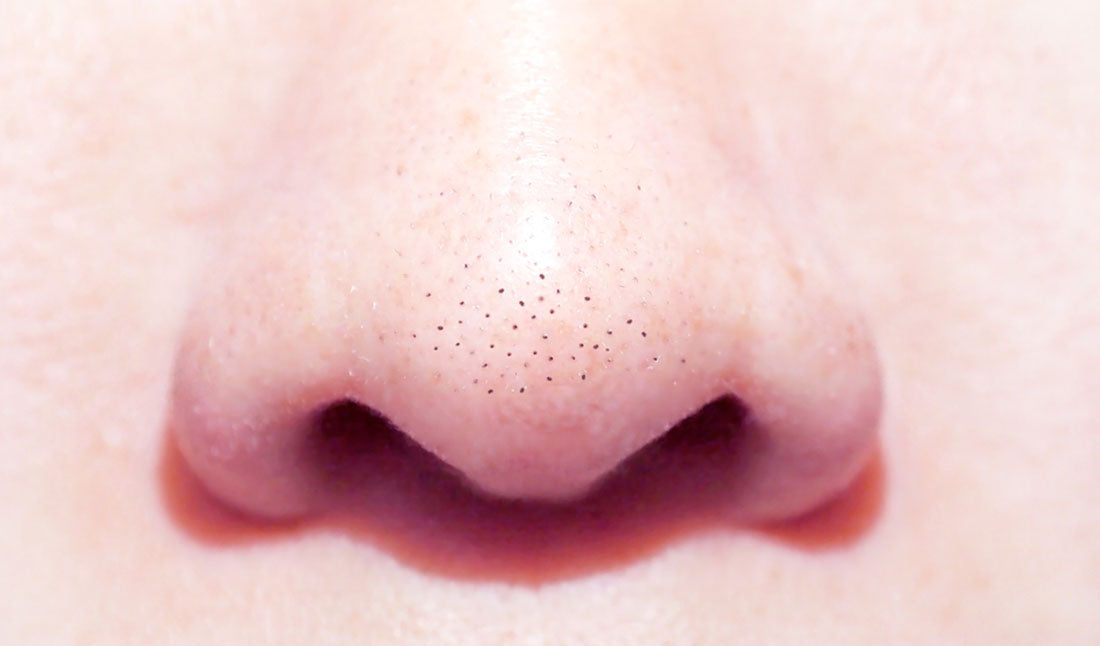closeup blackheads on nose