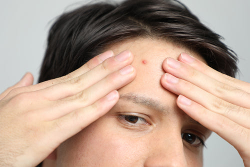 Acne In Hair >> Pomade Acne Can Hair Gel Cause Bumps On The Forehead Tiege Hanley