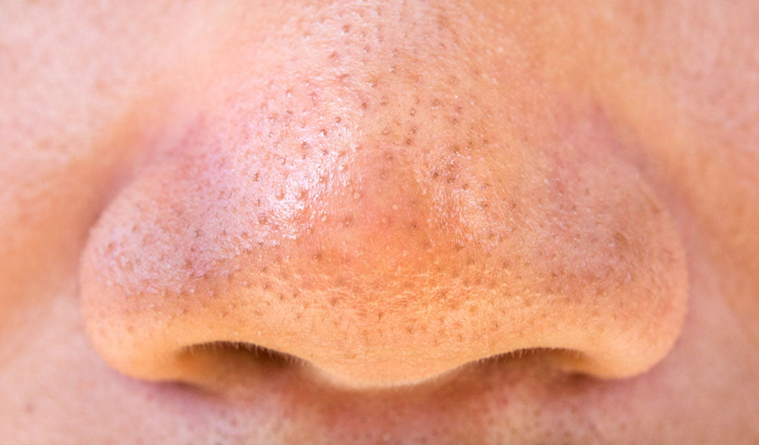 closeup mans pores on nose
