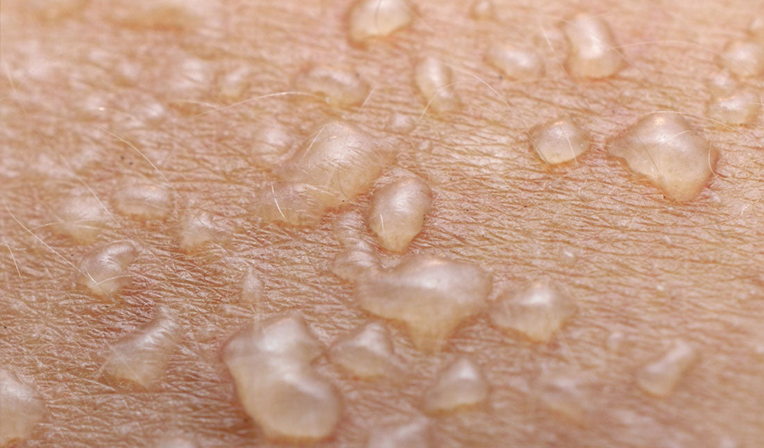 closeup of skin blisters