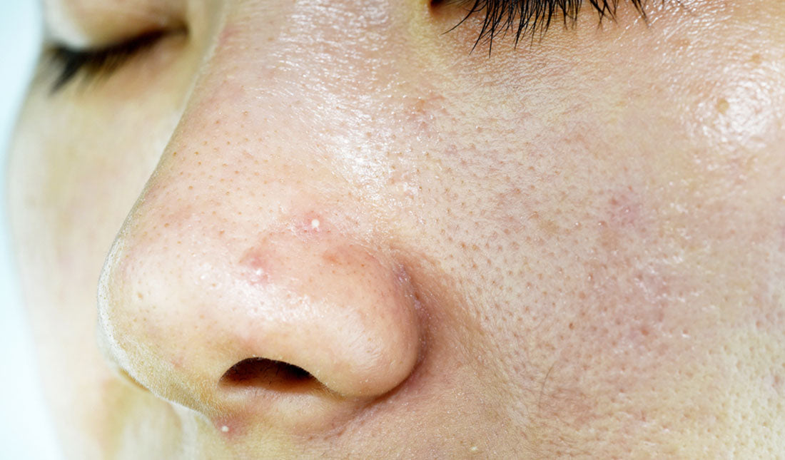 closeup skin with acne
