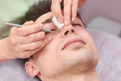 Nose Blackheads: Causes, Prevention and Treatment Options