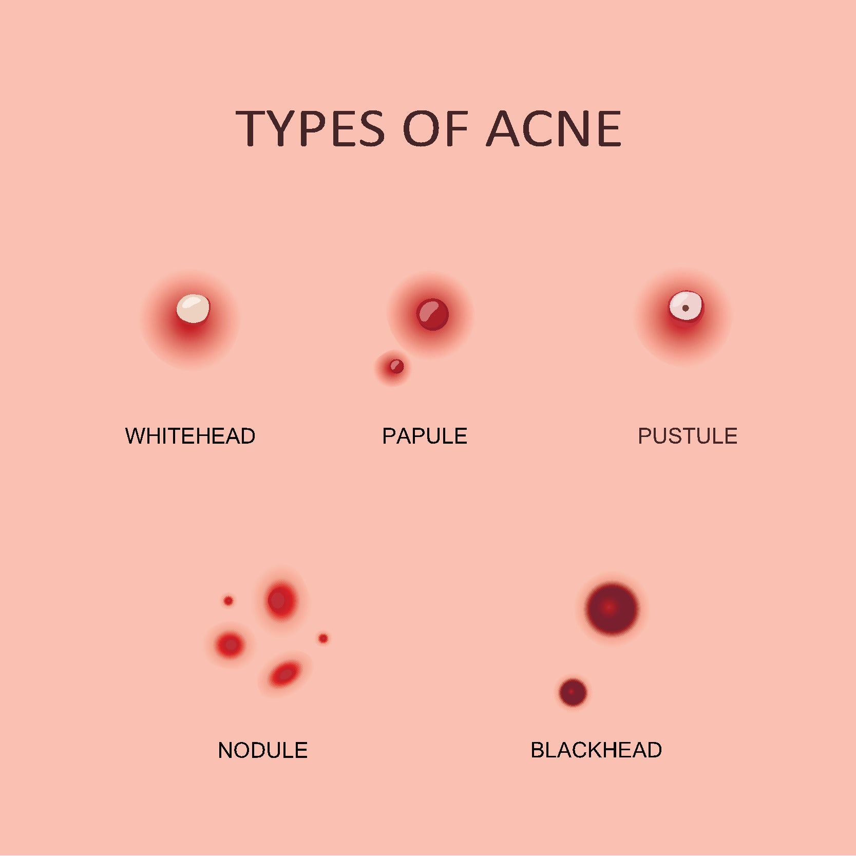 Acne Scars: What Causes Them and How to Treat Them