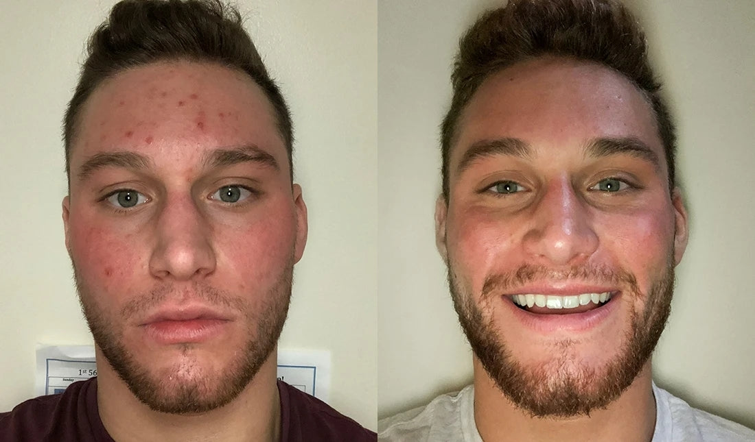 before and after using tiege hanley acne line