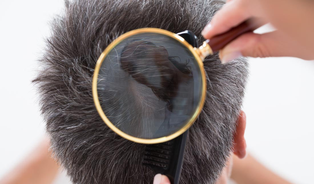 magnifying glass over mans scalp