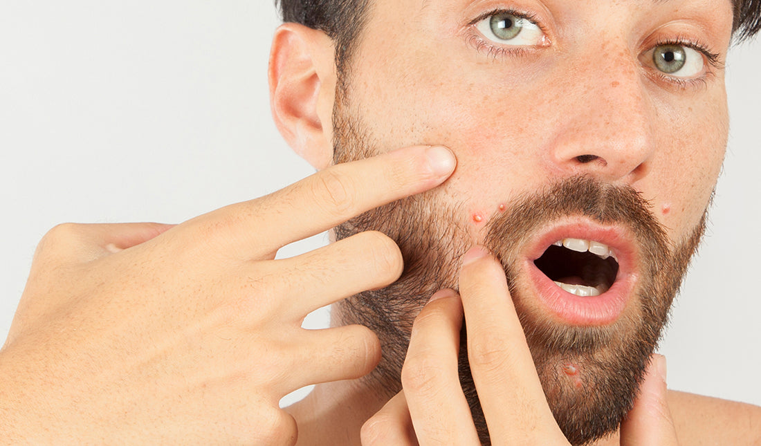 man touching his face with acne around mouth