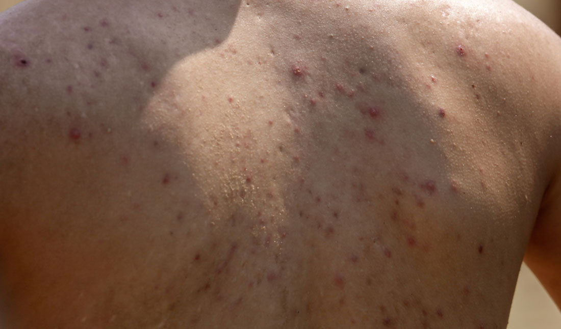 man with back acne