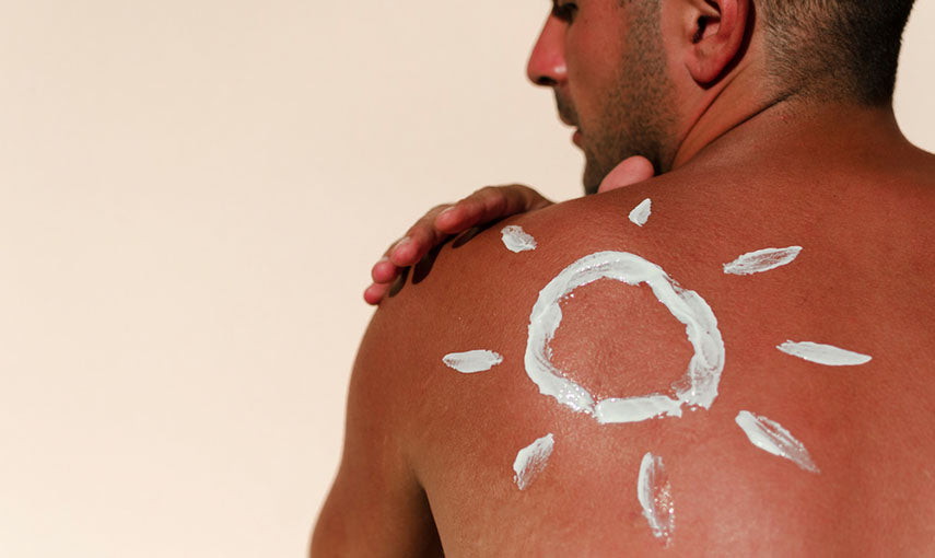 man with reddened skin after sunburn