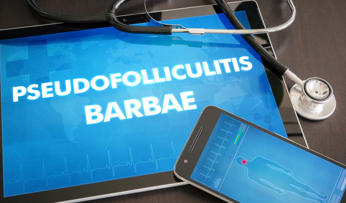 pseudofolliculitis barbae wording on smart devices