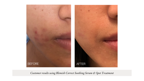 Blemish Correct Soothing Serum & Spot Treatment | Wabi-Sabi Botanicals
