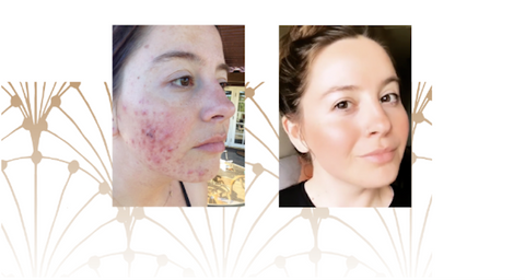 How To Heal Pimples Fast - Wabi-Sabi Botanicals