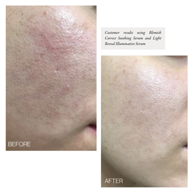 Blemish Correct | Soothing Serum & Spot Treatment [PREORDER]