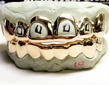3 Reasons to Consider Custom Grillz