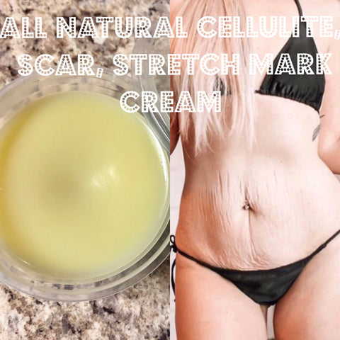 All Natural Scar Cellulite Stretch Mrk Cream