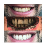 Teeth Whitening Charcoal Power