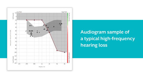 What is High-Frequency Hearing Loss