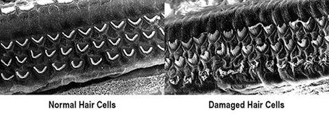 Normal and Damaged Hair Cells