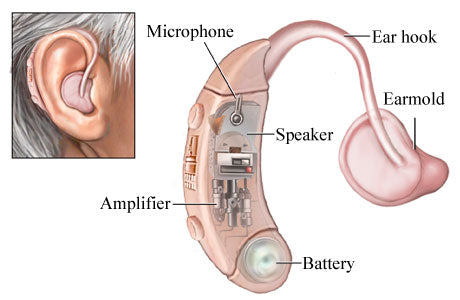 What are the Hearing Aids