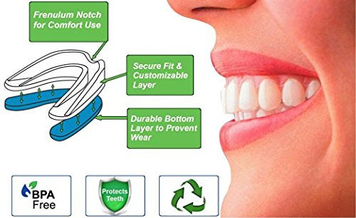 mouth guard molding instructions