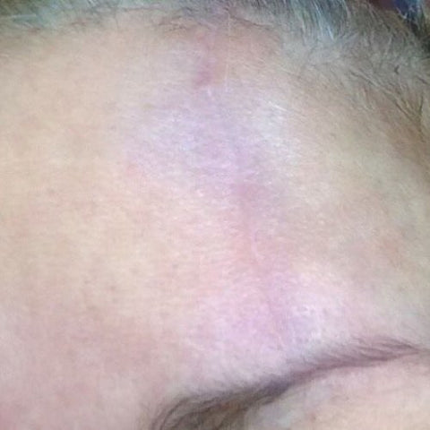 RF Fractional Resurfacing