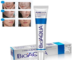 BlissfulSkin Acne Blackhead Remover Cream