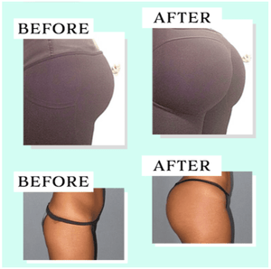 Ultimate Butt-Lift Shaping Patch