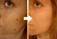 Load image into Gallery viewer, Instant Acne Blemish Removal Gel