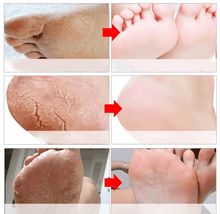 Load image into Gallery viewer, Efero Exfoliating Foot Mask