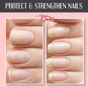 Instant Nail Repair Protect Gel