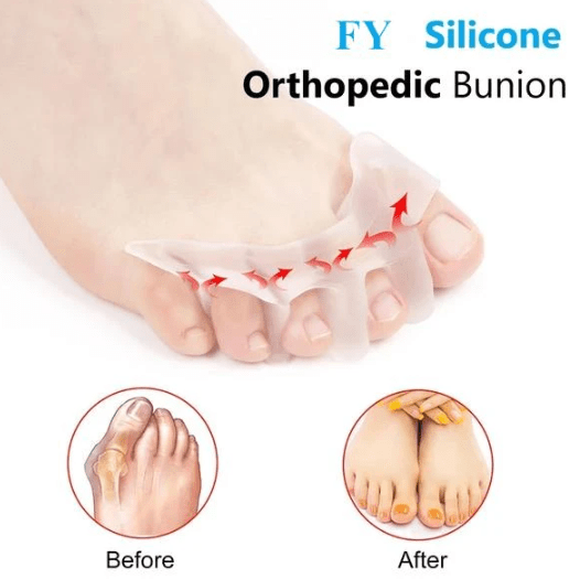 Silicone Orthopedic Bunion Corrector - 2020 Edition