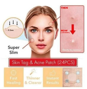 Painless Acne Patch (50% OFF Today)**