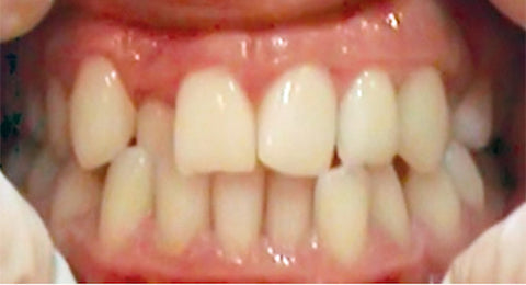 crowded teeth problem
