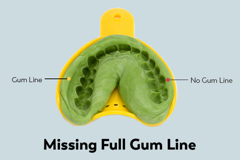 Missing full gumline impression example