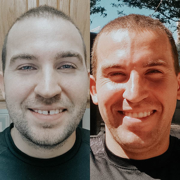 Mans' teeth correction side-by-side